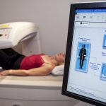 Womens Health and Menopause Center Bone Density