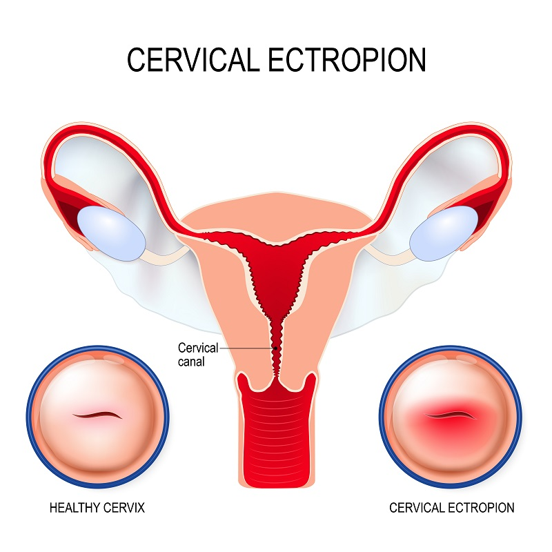 Women's Health and Menopause Center Cervical Ectropion