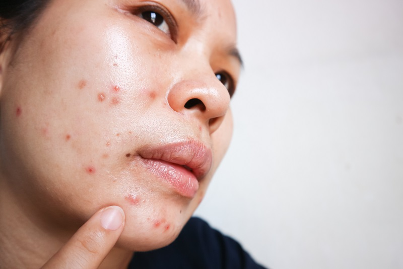 Womens Health Pregnancy and Acne